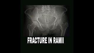 PELVIS BONE FRACTURE WHAT TO DO OR WHAT NOT TO DO
