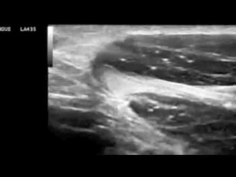 การรักษา apitherapy เส้นเลือดขอดเซนต์ปีเตอร์สเบิร์ก