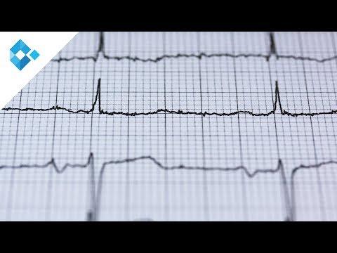 Ultraschall Zeichen der portalen Hypertension ist nicht