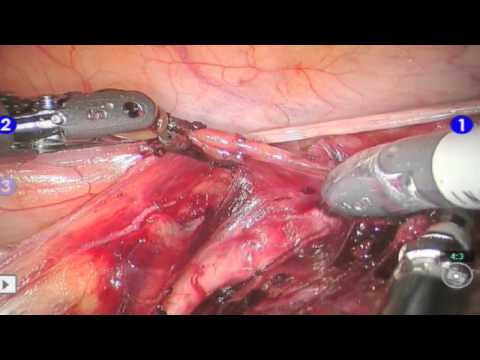 Robotic Hysterectomy for Large Uterine Fibroids and Endometrial Cancer