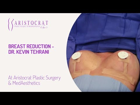 Breast Reduction- Dr. Kevin Tehrani