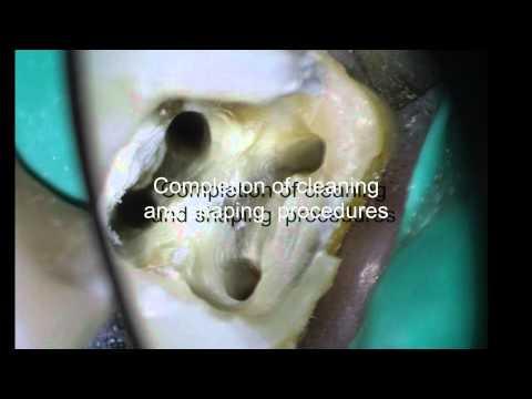 Periodontal-Endodontic Considerations