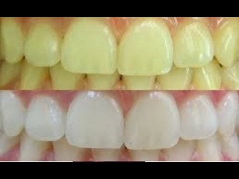 Como Clarear Os Dentes Em 2 Minutos Por Menos De 2 Reais Remover