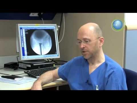 Prostatitis epididymal Zyste