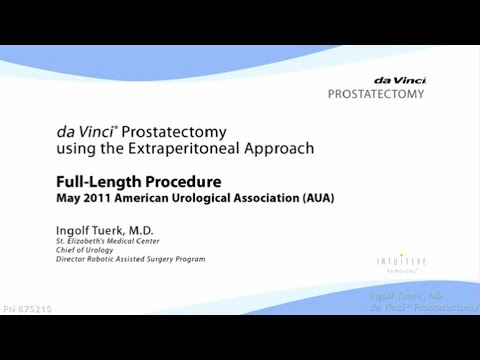 daVinci Prostatectomy using the Extraperitoneal Approach