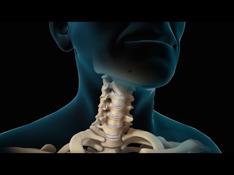 Dibdib-angat sa ilang mga implants