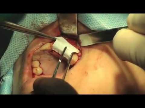 Имплантация в сочетании с аугментацией