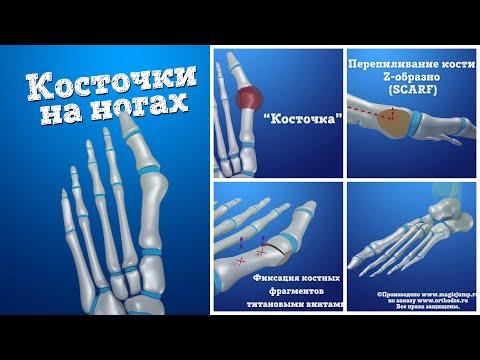 Der Zapfen auf dem Finger vom Griff was zu machen,