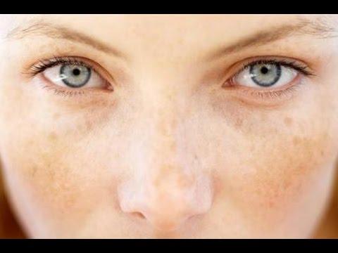 Quali unguenti farmaceutici candeggiano la pelle