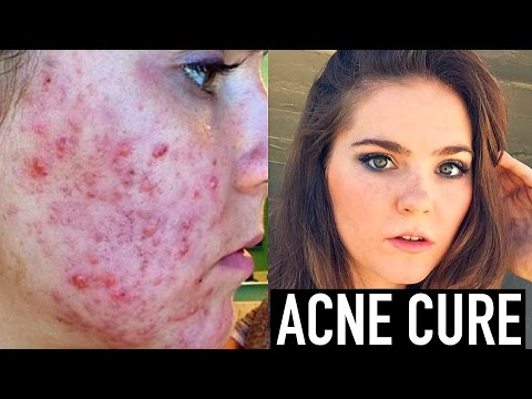 Video CURING ACNE + Acne Scar Treatment