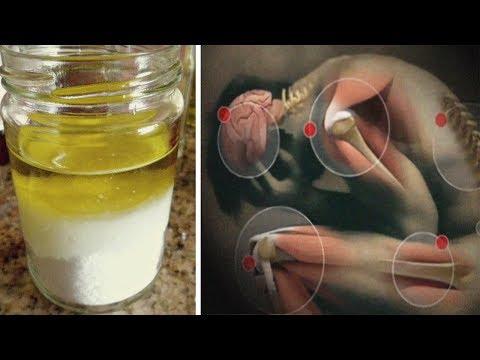Titolo colpi in osteocondrosi della colonna cervicale