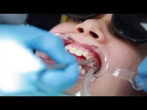Braces: Putting Braces On Bonding Procedure - Aura Orthodontics