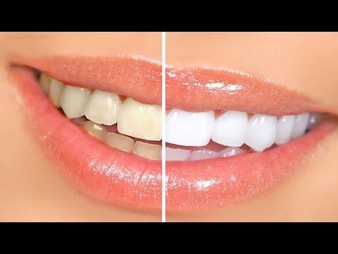 Top-11-Dental-Crowns-Clinics-in-Latin-America