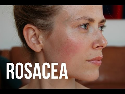 Video What's Rosacea And Treatments | Makeup And Medicine