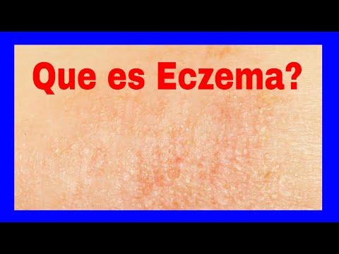 Unguento do eczema molhado conveniente