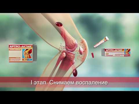 "Действие препаратов линии ""АРТРО-АКТИВ"""
