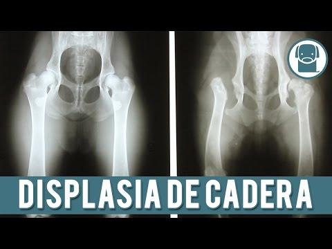 ¿Por qué el dolor articular en la pierna