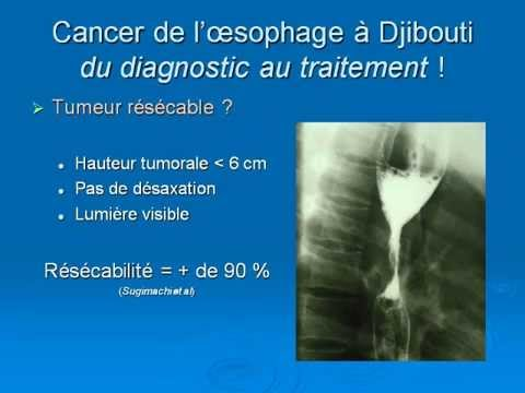 Le travail de pratique au traitement des maladies variqueuses du constantinien