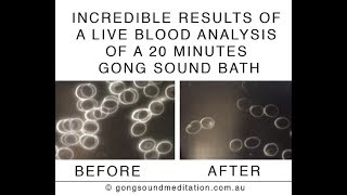 Incredible Results After A 20 Minute Gong Bath