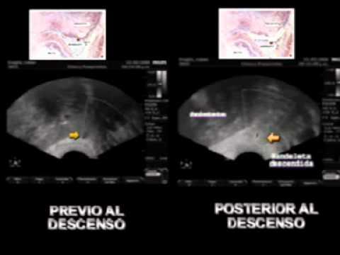 Wachs Gesundheit Creme von Prostatitis
