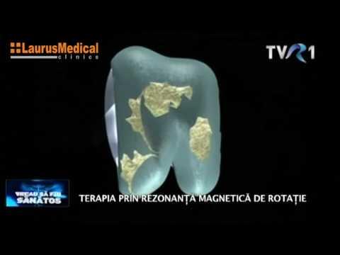 Tratamentul artrozei cu sevastopol