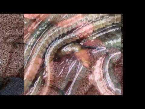 Kung paano ipapakita ang mga bituka bulate sa mga bata 13 taong gulang