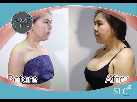 SPB การเสริมเต้านม