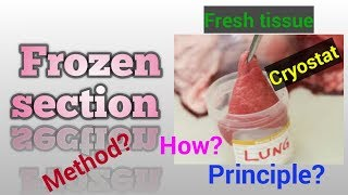 Frozen section in Histology/Frozen section biopsy/Frozen section preparation/STAR LABORATORY