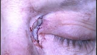 Repair of medial canthal web with a skin graft
