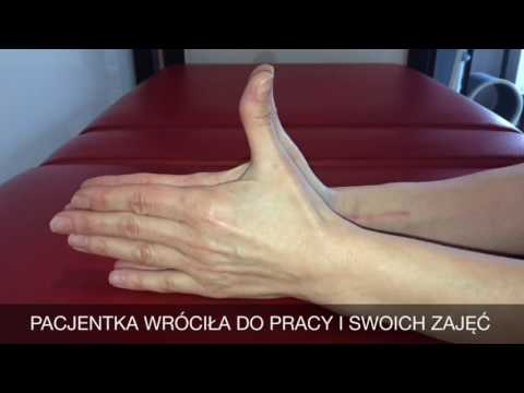Stożek wewnątrz nogi boli