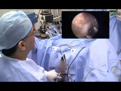 La chemioterapia nel trattamento della prostatite
