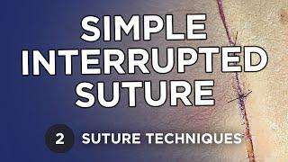 Simple Interrupted Suture - Suture Techniques - Michael R. Zenn, MD