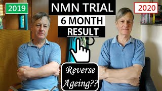 NMN Resveratrol Trial Six Months' Result | Did We Reverse Our Age?