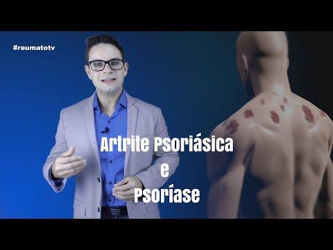 Medicina homeopática em tratamento de psoríase