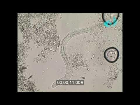 Угрица кишечная (Strongyloides sterkoralis) - подробности в инфобоксе