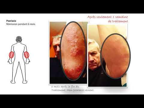 Les symptômes du psoriasis sur la tête