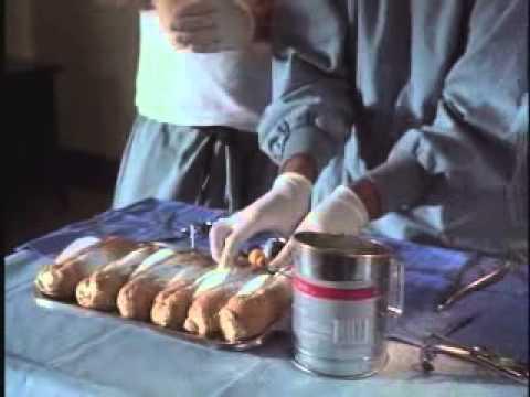 Laparoskopische Chirurgie von Prostata-Adenom
