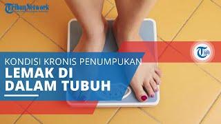 Obesitas, Kondisi Kronis akibat Penumpukan Lemak dalam Tubuh yang Sangat Tinggi