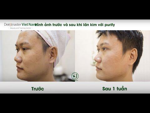 Liệu trình lăn kim điều trị sẹo rỗ với FB Purifiant