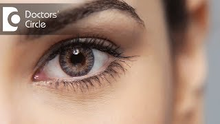 Different procedures for the removal of a mole in sclera - Dr. Sunita Rana Agarwal