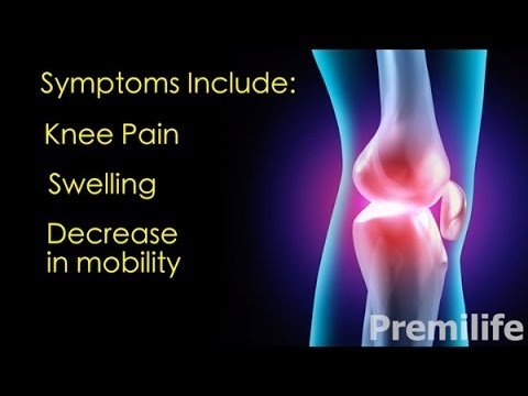 Остеоартрит - Лечение и востановление - By Premilife