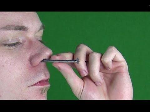 Otslojenije des Nagels vom Nagelbett die Behandlung auf den Beinen