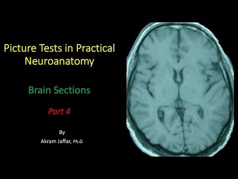Anatomia przekrojowa mózgu część 4