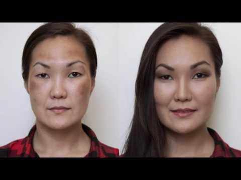 Грибок кожи с пигментацией