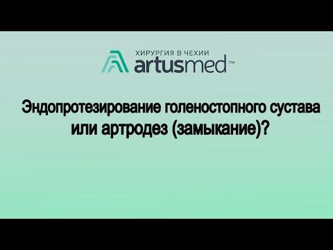 Эндопротезирование голеностопного сустава или артродез(замыкание): что лучше?