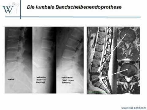 Schmerzmittel bei Gelenkschmerzen Nimesulid