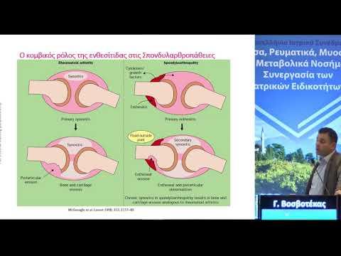 Γ. Βοσβοτέκας - Αποτελεσματικότητα και ασφάλεια του ustekinumab σε ασθενείς με ψωριασική αρθρίτιδα στην καθημερινή κλινική πράξη