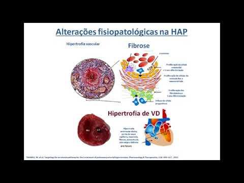 Tipos de crise hipertensiva