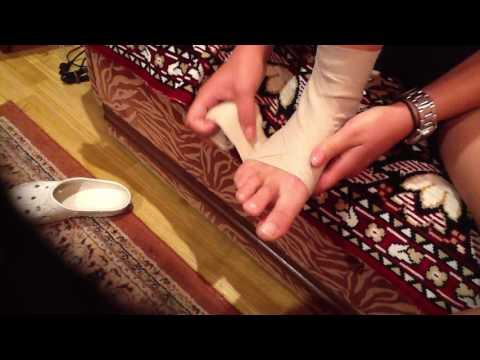 Artrita edemului articulației genunchiului