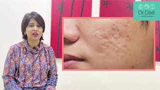 HOW TO TREAT PUS FILLED PIMPLES | DR RASYA DIXIT | ACNE CARE TIPS